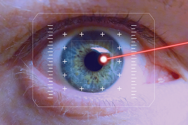 Laser Eye Technology Image Example for Cathedral Eye Clinic