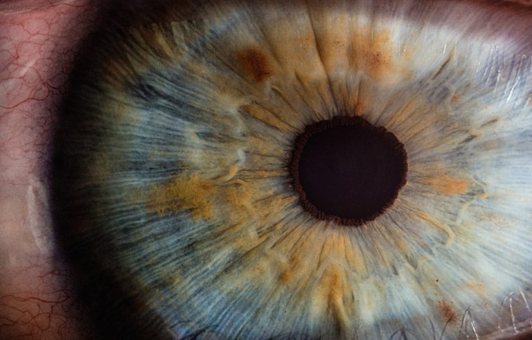 Looking after your eyes - Cathedral Eye Clinic