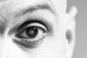 What are Cataracts? And the Symptoms