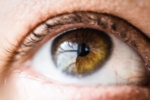 What is SMILE laser-eye Surgery