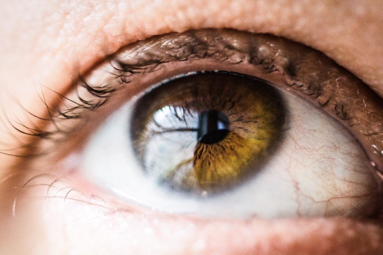 What is SMILE laser-eye Surgery? Cathedral Eye Clinic